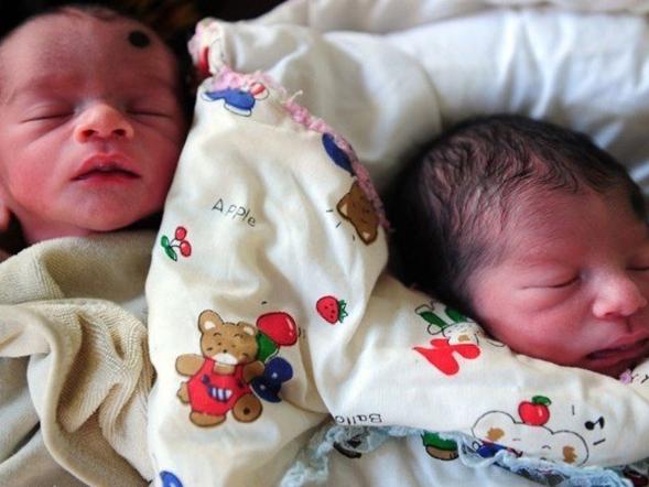 ゲノム編集で誕生した双子
