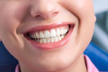 歯の健康にはフッ素塗布がいいと思っていませんか?